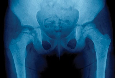 Figure 1. X-ray shows dislocation of the left hip in a 5-year old girl.
