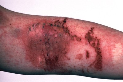 Urticaria pigmentosa is found in most patients with mastocytosis.