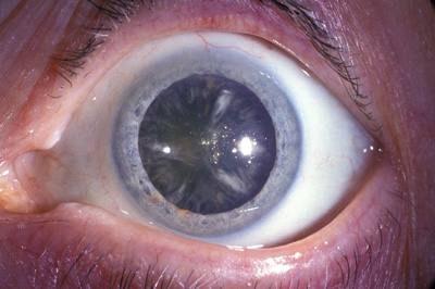 Sun Sensitive Drugs May Lead To Cataracts The Clinical