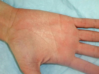 Exposure to moisture leads to palmar rash