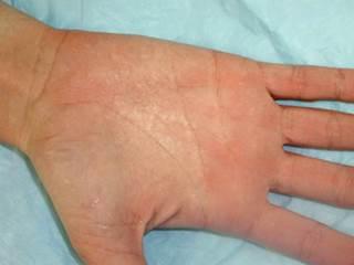 Exposure to moisture leads to palmar rash - The Clinical ...  Exposure to moi...
