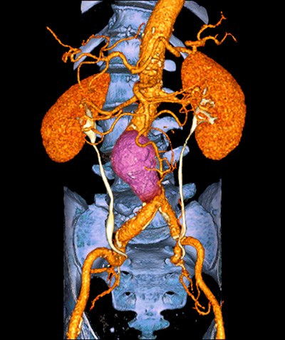 Imaging options for patients with acute abdominal pain