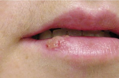 Vesicle on the lip after intense sun exposure