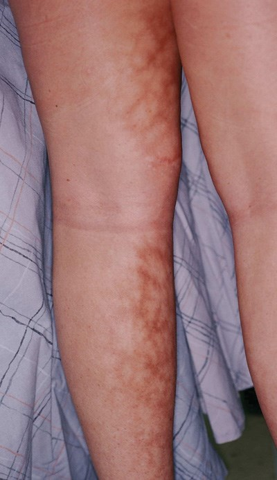 Bilateral netlike rash on the lower legs