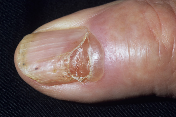 Nail Diseases & Disorders - Hooked On Nails