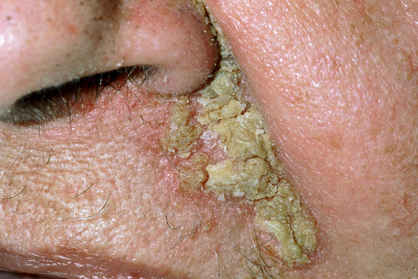 Sebhorrheic dermatitis