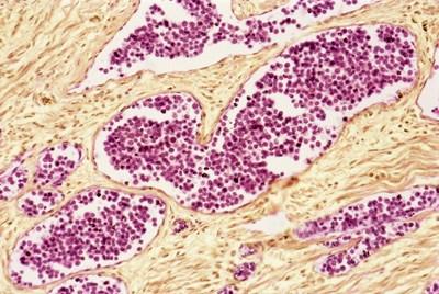 Treatment goal for acute myeloid leukemia
