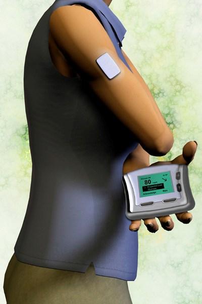 New technology aids glucose monitoring