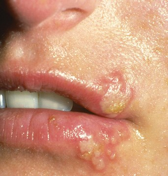 Blisters on the lip and in the mouth