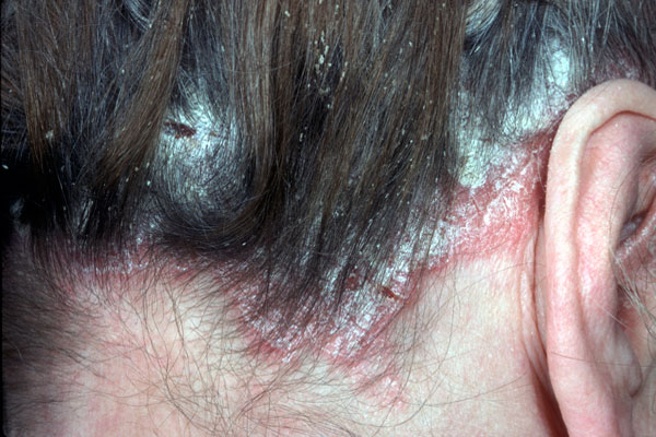 Scalp psoriasis is the irritating dandruff type patches of skin with scaly patches 1