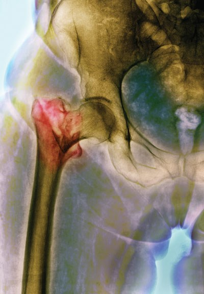 Colored x-ray of the pelvic region shows a fractured femur (red) caused by a fall.