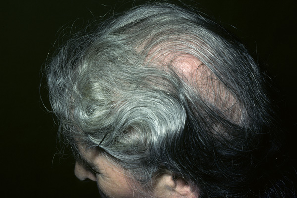 Diffuse alopecia on the scalp