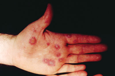 how to look after blisters