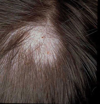 Slightly erythematous, scaly scalp lesion