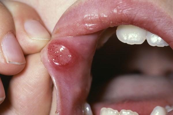 Quick relief of oral mucositis