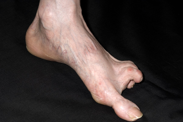 Foot with scleroderma