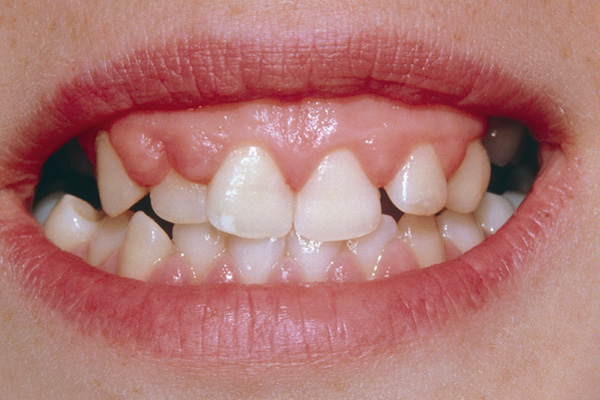 Hyperplasia of the Upper Gums