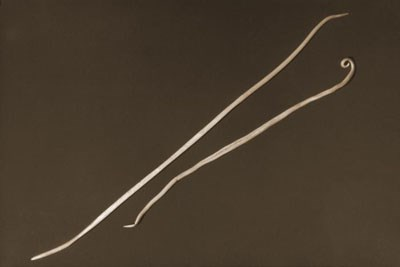 Two Ascaris lumbricoides nematods, i.e., roundworms. Photo credit: CDC