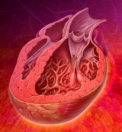 This illustration shows enlargement of the ventricular cavity during heart failure.