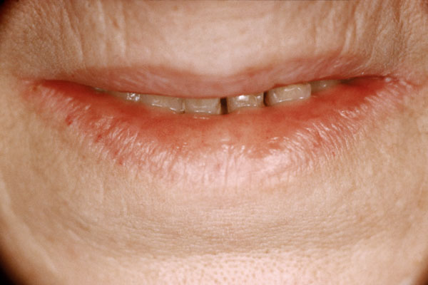 Ariboflavinosis