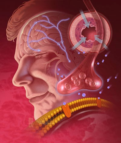 Obesity increases migraine risk