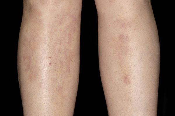 What Causes Red Blotches on Legs? | LIVESTRONG.COM