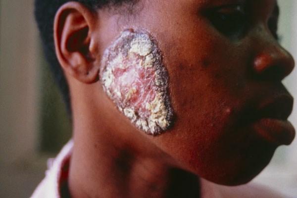 TB lesion
