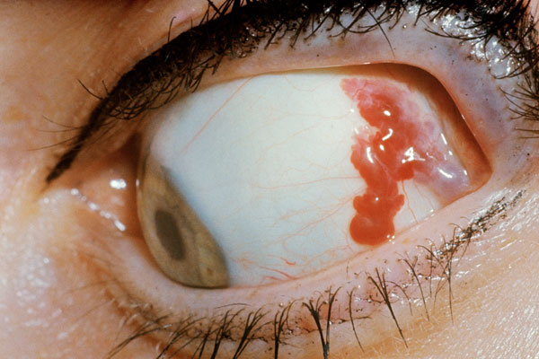 Hemangioma of the eye