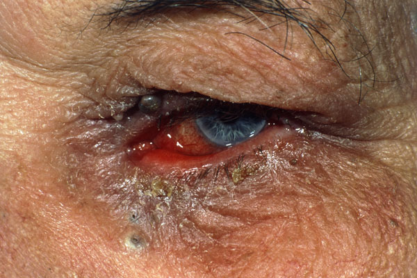 Chronic conjunctivitis