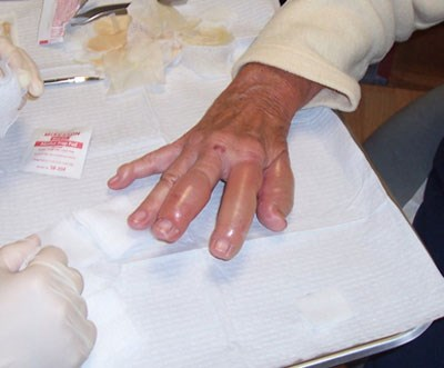 Blisters on the hands and fingers of a woman with discolored urine