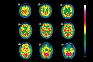 Brain scan shows diffuse Lewy body dementia.