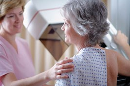 Mammography accuracy in cancer survivors