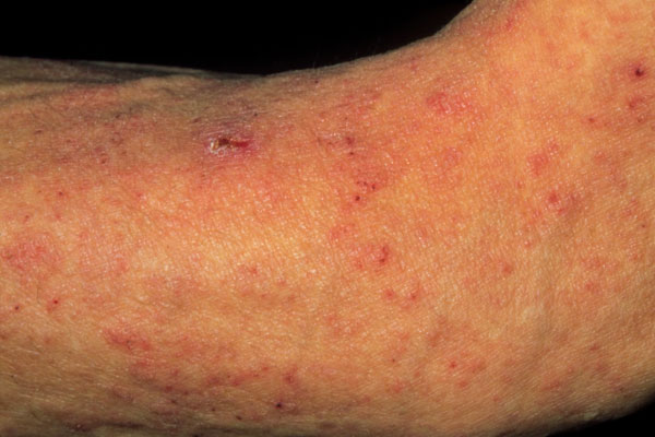 Scabies 3 Picture Image on MedicineNet.com