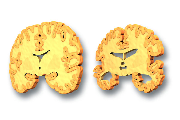Biomarkers: Brain Atrophy