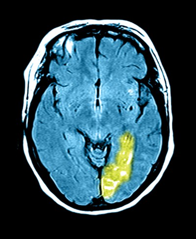 MRI shows a stroke involving the left temporal-occipital region (green).