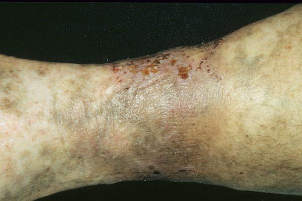 Ulceration