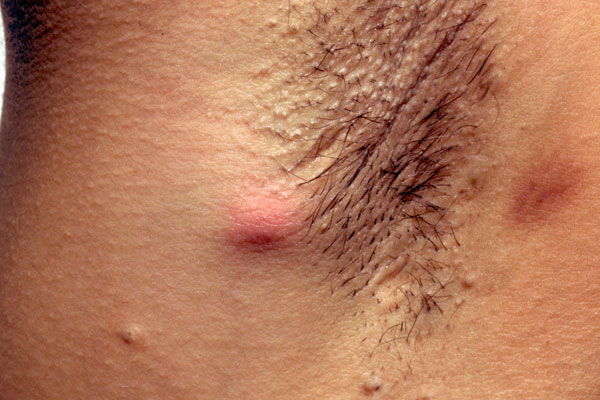 folliculitis - Lymphedema People