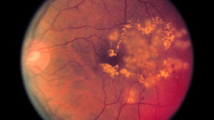 Diabetic retinopathy: diagnosis, prevention and treatment