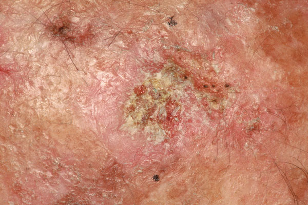 Actinic keratosis