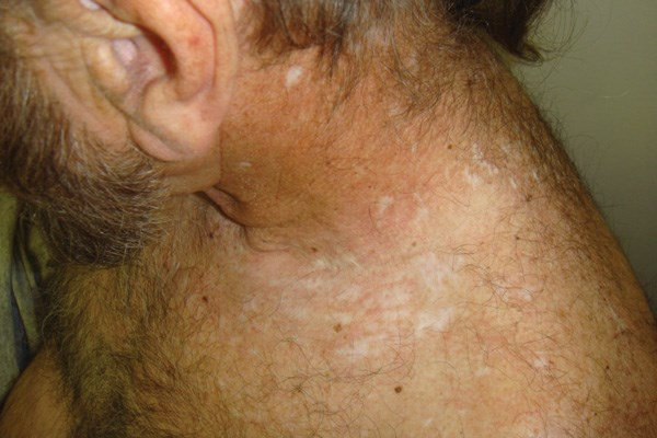 Neck rash coupled with refractory neuropathic pain