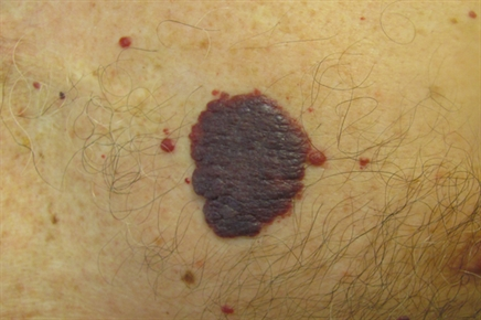 vascular nodules and papules the clinical advisor