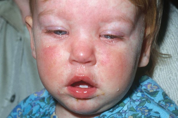 Five measles cases reported at Illinois day care