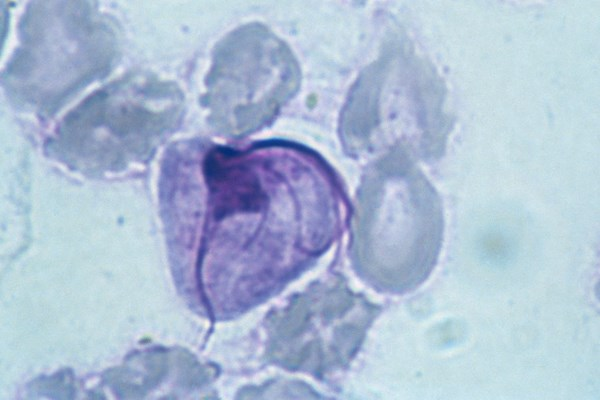 Trichomonas vaginalis prevalent in older women