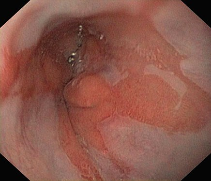GERD not helpful in esophageal cancer screening