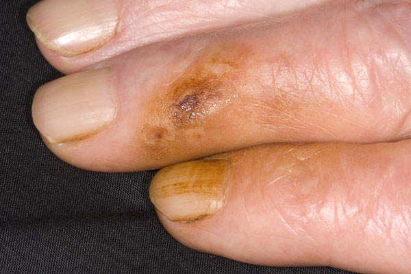 Skin and Nail Discoloration