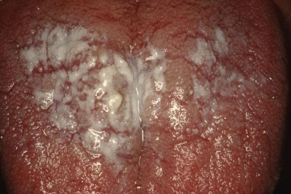 Nicotine Stomatitis