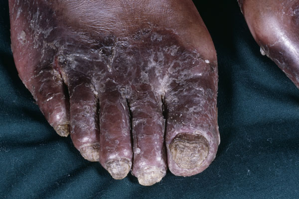 Common Cutaneous Complications of HIV Disease - PRN