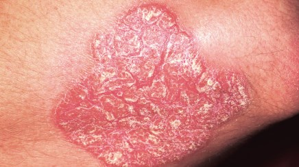 Growing skin plaques with scale