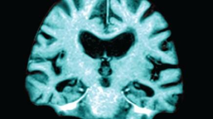 Drug slows cognitive decline in severe AD