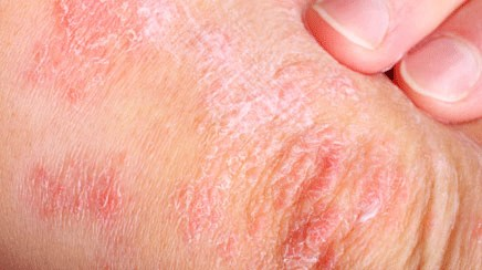 Psoriasis independently linked to diabetes risk